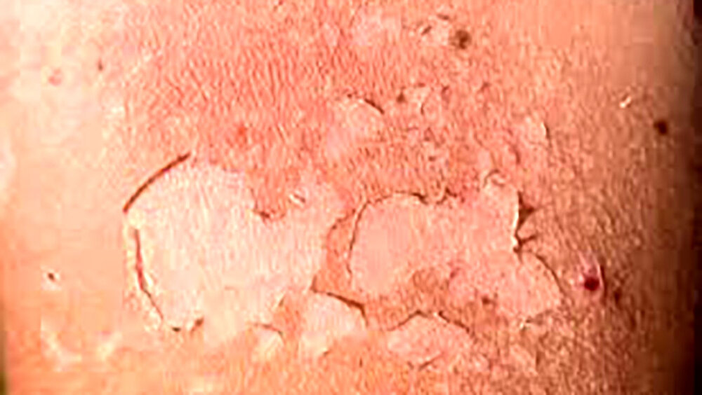 چگونه از ابتلا به سرطان پوست پیشگیری کنیم؟