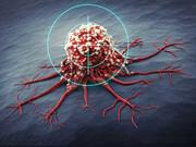۲ روش جدید درمان برای سرطان ریه