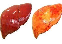 راهکارهای طب سنتی در درمان کبد چرب