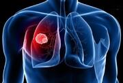 علت سوراخ شدن ریه بیماران کرونایی + جزئیات
