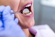 باورهای غلط پیرامون بهداشت دهان و دندان