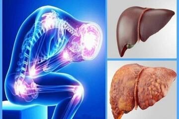 از علائم و نشانه های کبد چرب