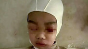 جداشدن پوست سر کودک در تنبیه سخت معلم  + عکس