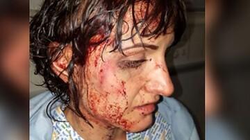 حمله با چکش به همسر سابق + تصویر
