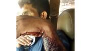 حمله ی خرس به مرد خوزستانی / دستش را درید + عکس