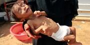 خطر مرگ جمعی در کمین میلیونها کودک یمنی