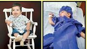 مهرسام 11 ماهه فرشته نجات شد! / بعد از عمل جراحی دچار مرگ مغزی شده بود ! + عکس