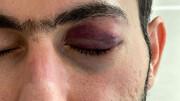 جزئیات ماجرای حمله به دکتر تقی زاده در بندرعباس / چشم پزشک هدف چاقوی جوان عصبانی