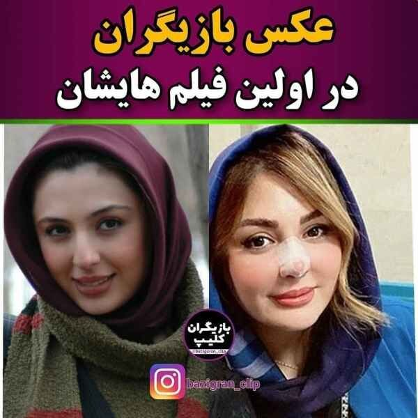 عکس های قدیمی بازیگران مشهور ایرانی بدون عمل زیبایی