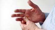 بیماری ها را از روی دست ها بشناسید!