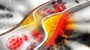چربی خون موجب پیشرفت سرطان میشود؟