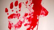 دختر جوان تهرانی بخاطر یک سگ در ویلای شمال کشته شد