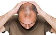 چه کنیم تا ریزش مو نداشته باشیم؟