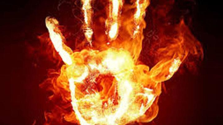 همسر یک کارگر شهرداری به خاطر فقر خود را به آتش کشید