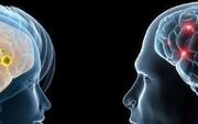 زنان به نسبت مردان بیشتر از دو نیمکره مغزشان استفاده میکنند