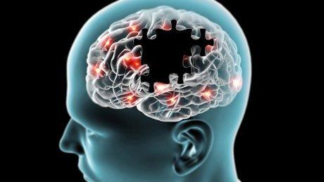 اثر عصاره درخت زبان گنجشک در محافظت از آلزایمر