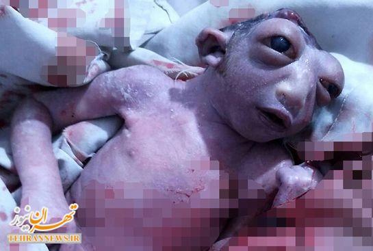 تولد نوزاد عجیب الخلقه با یک نصف سر! + تصاویر +۱۸