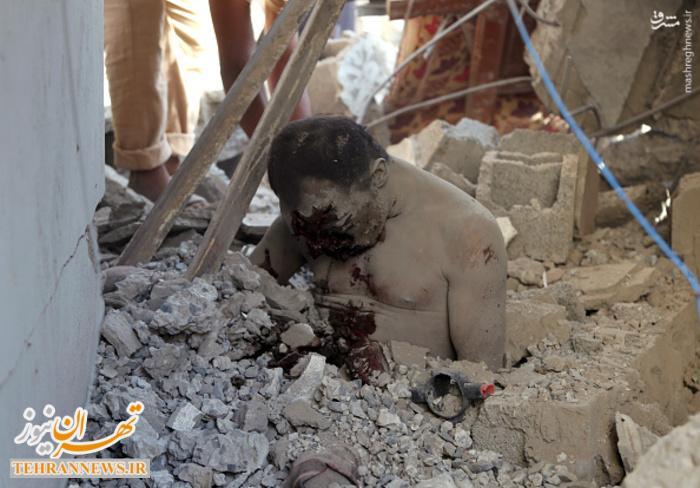 عکس/ تصاویر دلخراش از حمله جنگندههای سعودی به زندانی در یمن (۱۸+)