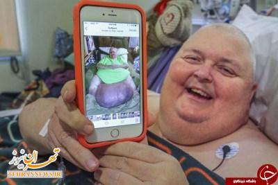 درآوردن تومور ۵۸ کیلویی از شکم مرد میانسال + عکس