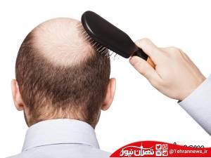 عواملی که منجر به ریزش مو میشود