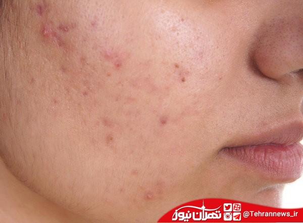 درمان خانگی برای پوستهای چرب