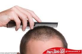 ۵ ویتامین برای رشد بیشتر موها