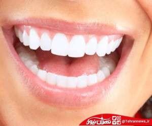 تشخیص بیماری های خطرناک از وضعیت دهان و دندان!