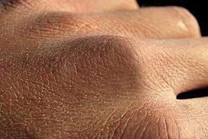توصیه هایی برای جلوگیری از خشکی پوست