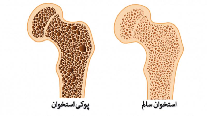بعد از عمل کاهش وزن مراقب استخوان های خود باشید!