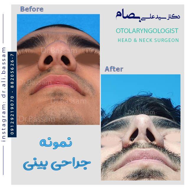 قبل از جراحی بینی بدانید